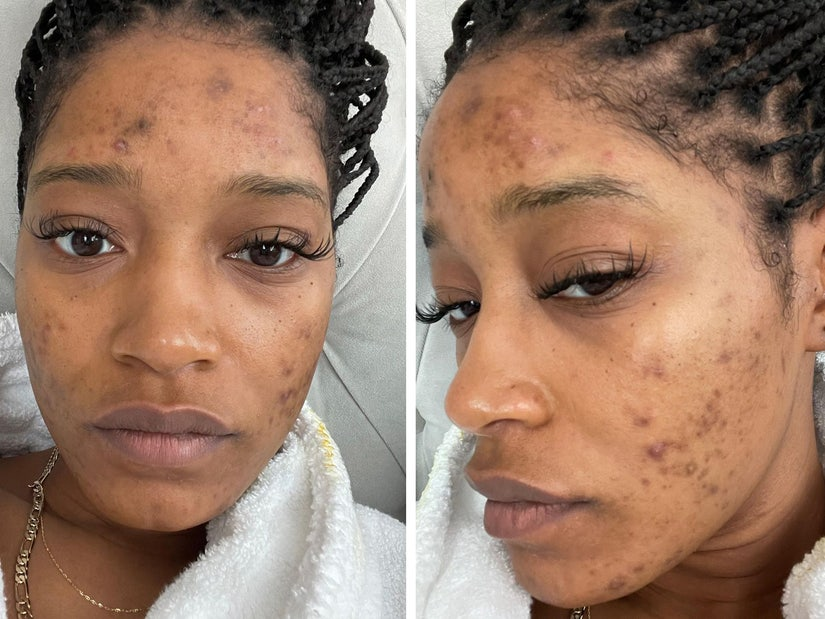 Keke Palmer Opens Up About Pcos Diagnosis