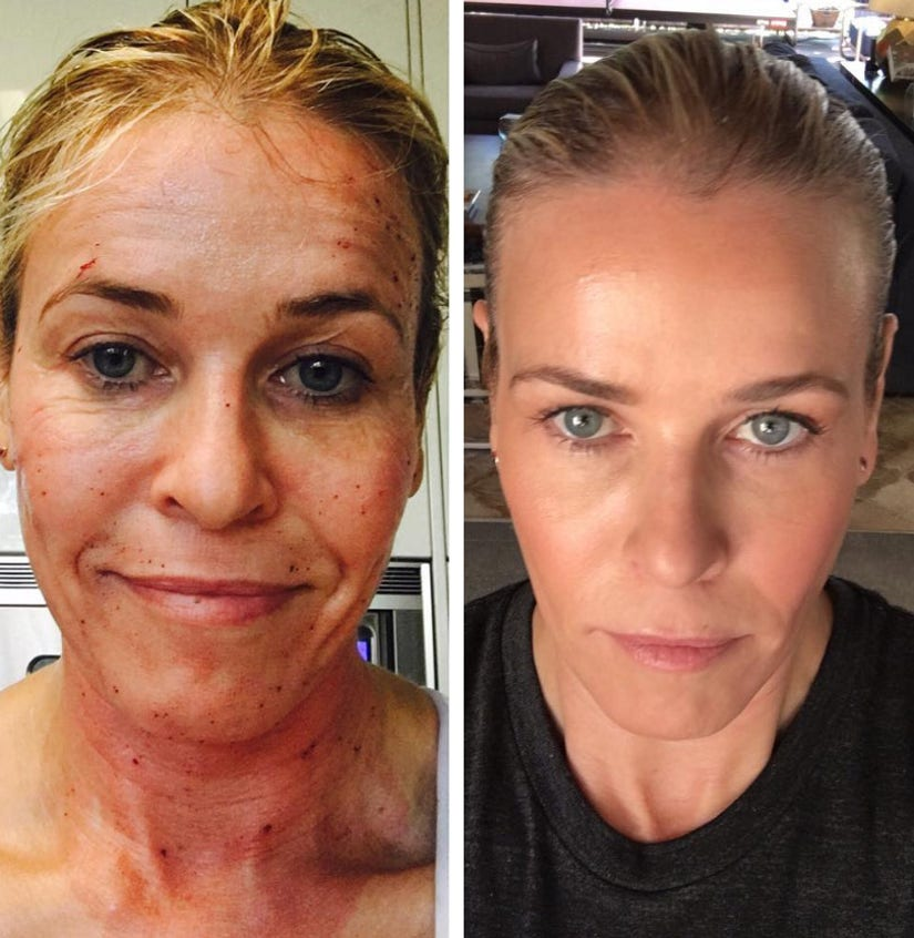 Chelsea Handler's Before-and-After Laser Treatment Pics Might Terrify--and Amaze--You!